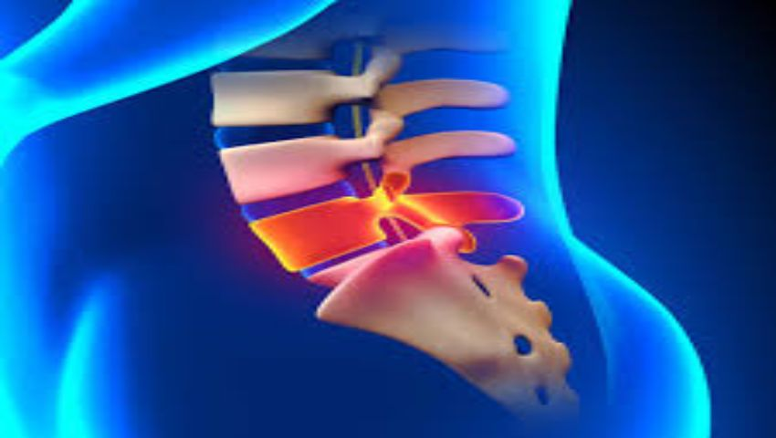 Spinal Stenosis Surgery in India